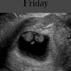 My Blackest Friday:  a Pregnancy Loss