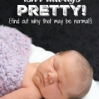 A Newborn's Skin Isn't Always Pretty