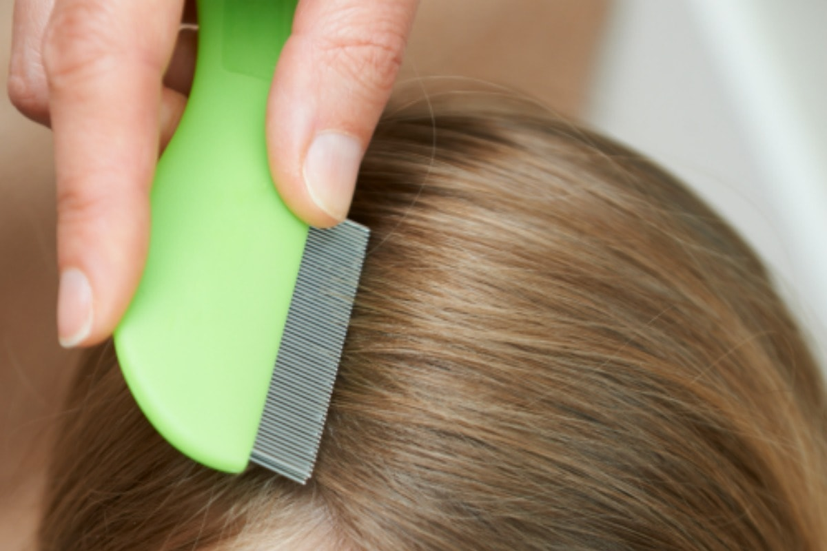 The Best Way To Get Rid Of Head Lice Life Is Sweeter By Design