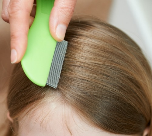 tips for getting rid of head lice